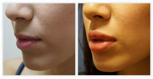 Before and After Juvederm for lip injections