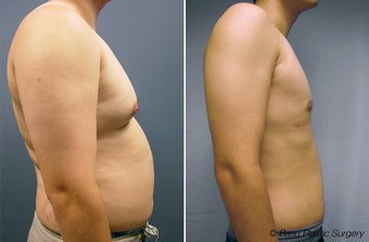 Male-Breast-Reduction-before-146922[2]