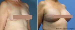 houston breast reconstruction photo