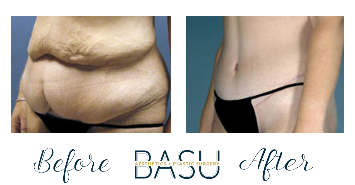 Before and After Tummy Tuck at Basu Plastic Surgery