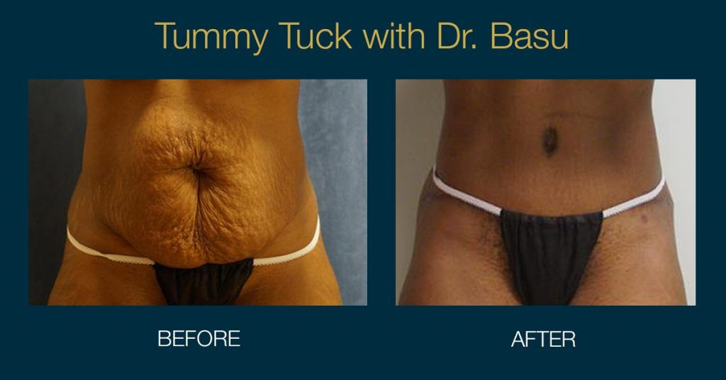 Why Tummy Tuck is a great option after pregnancy.