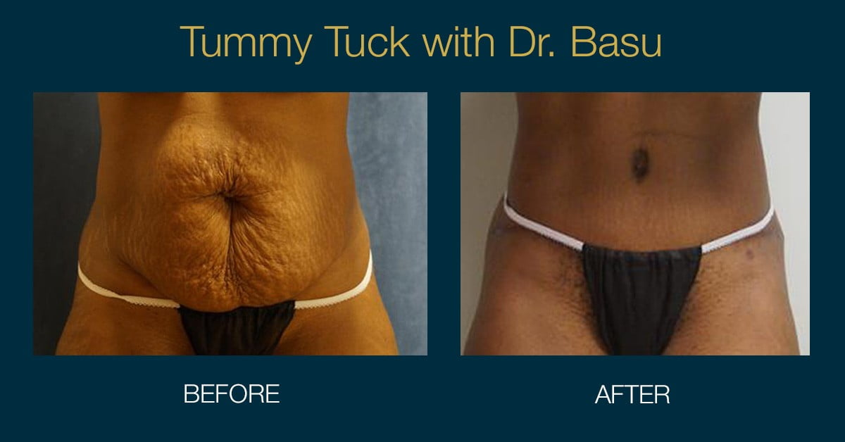 Your Guide To A Post Pregnancy Tummy Tuck Basu Aesthetics