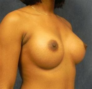 BREAST AUGMENTATION CASE 109