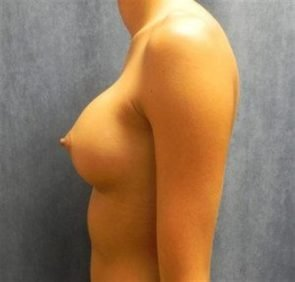 BREAST AUGMENTATION CASE 112