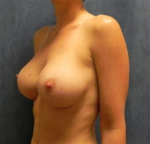 BREAST AUGMENTATION CASE 113