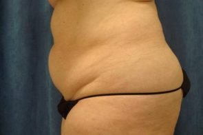 ABDOMINOPLASTY WITH LIPOSUCTION CASE 451