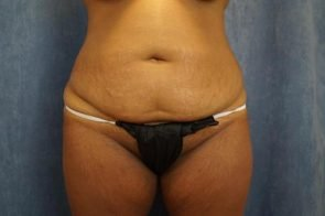 ABDOMINOPLASTY WITH LIPOSUCTION CASE 452