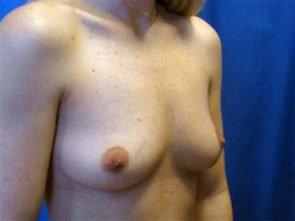 BREAST AUGMENTATION CASE 168