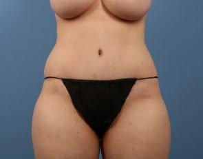 Tummy Tuck Case #200