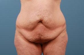 Tummy Tuck Case #202