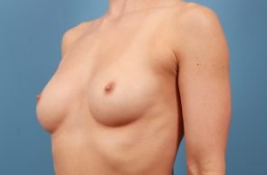 Breast Augmentation Case #205