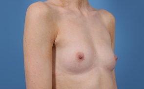 Breast Augmentation Case #206