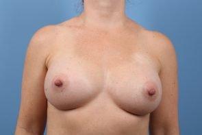 Breast Augmentation Case #210