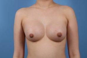 Breast Augmentation Case #216