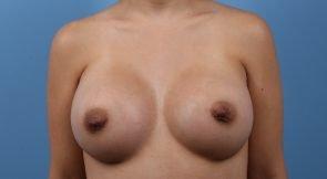 Breast Augmentation Case #213